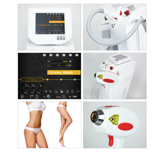 diode laser removes unwanted hair faster then any other treatment